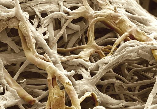 Penicillium fungus
