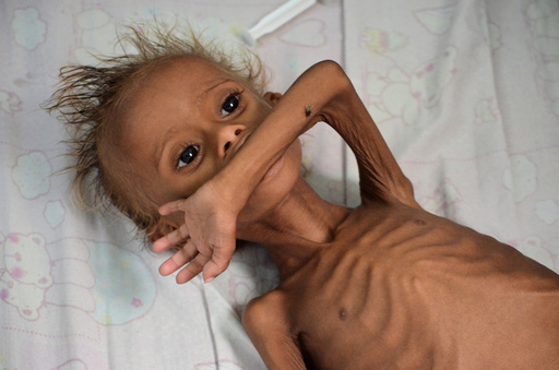 Malnourished boy lies on a bed at a hospital in the Red Sea port city of Houdieda