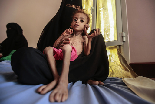 "FILE - In this Oct. 1, 2018, file photo, a woman holds a malnourished boy at the Aslam Health Center, in Hajjah, Yemen. A leading aid organization on Monday warned that U.S. Secretary of State Mike Pompeo's move to designate Yemen's Iran-backed Houthi rebels as a ""foreign terrorist organization"" would deal another ""devastating blow"" to the impoverished and war-torn nation. (AP Photo/Hani Mohammed, File)"