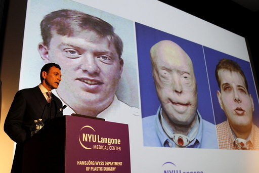 Dr. Eduardo D. Rodriguez holds news conference to announce successful face transplant operation at NYU Langone Medical Center in New York