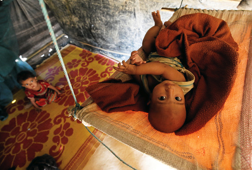 A Rohingya refugee child reacts to the camera as lies on a cradle at Kutupalang Unregistered Refugee Camp