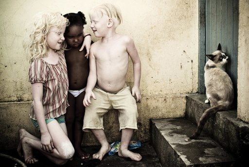 Albino siblings Caroline and Fernandes, play with their cousin Taina outside their home in the V9 slum of Olinda