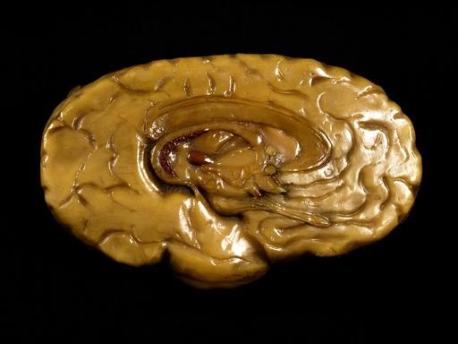 Brain model, 18th century
