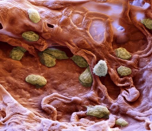 Alveolar macrophage, SEM