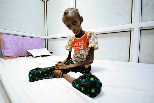 Saida Ahmad Baghili, who is affected by severe acute malnutrition, sits on a bed at the al-Thawra hospital in the Red Sea port city of Houdieda
