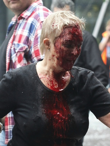 An injured woman, among others, leave the site of a powerful explosion that rocked central Oslo
