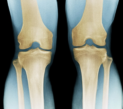 Normal knees, X-ray