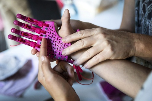 3D-printed prosthetic hand presented in Budapest