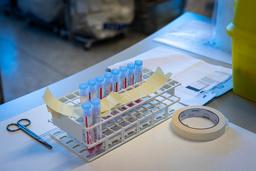 Positive koronaprøver til sekvensering ved Ullevål sykehus tidligere i år. Foto: Heiko Junge / NTB