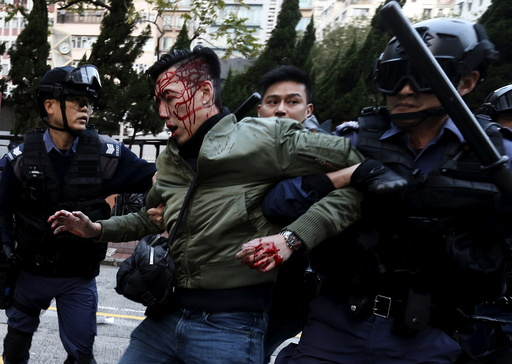 An unidentified injured man is escorted by riot police at Mongkok in Hong Kong