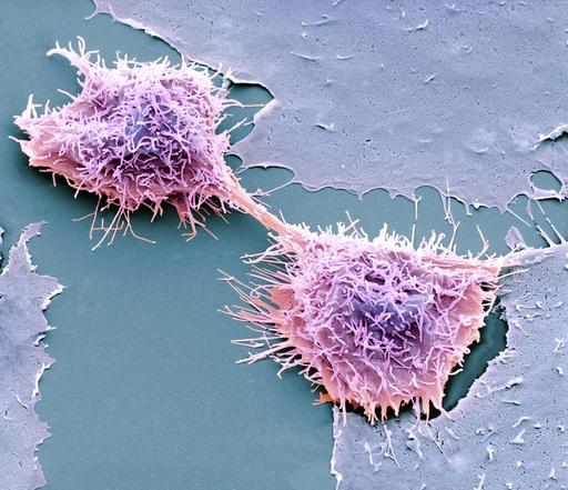Dividing HeLa cells, SEM