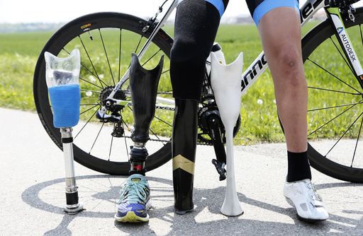 German paralympic cycling athlete Denise Schindler poses with her bicycle and her different artifical legs in Olching
