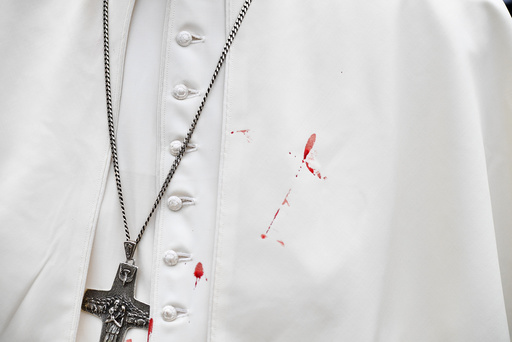 A few droplets of blood stain Pope Francis' white tunic from a bruise around his left eye and eyebrow caused by an accidental hit against the popemobile's window glass while visiting the old sector of Cartagena