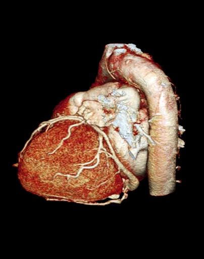 Normal heart, 3D CT scan