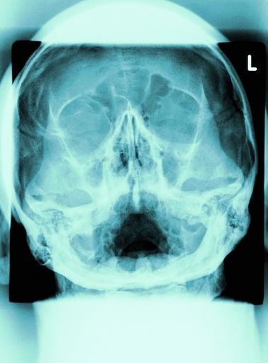 Healthy skull, X-ray