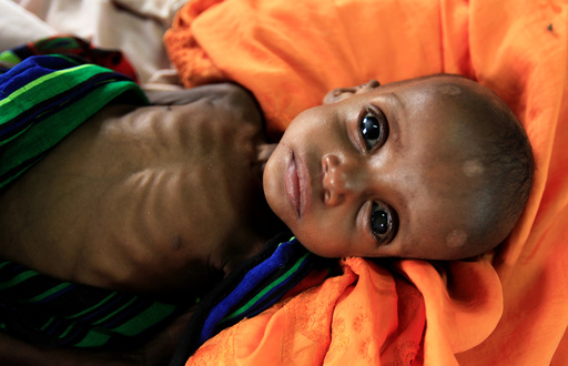 An unidentified severely malnourished Somali refugee child rests inside a ward at the Medecins Sans Frontieres (MSF) hospital at the Dagahale refugee camp in Dadaab, near the Kenya-Somalia border, in Garissa County